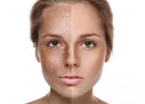 lechenie-giperpigmentacii