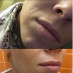 Фото до и после коррекции носогубных складок у пациентки с тонкой кожей