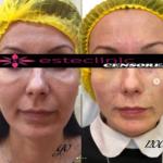 Фото до и после коррекции темных кругов и « мешков» под глазами сочетанной методикой( мезо раствор + гель