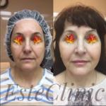 Фото до и после круговой подтяжки лица нитями Аптос и увеличения губ при помощи филлера