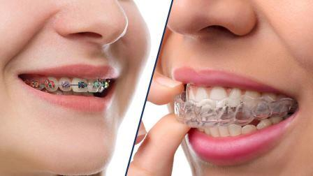 ortodontia-nn